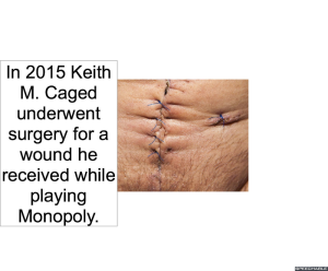 keith-m-caged-wound-monopoly