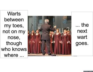 chorus-wart-song